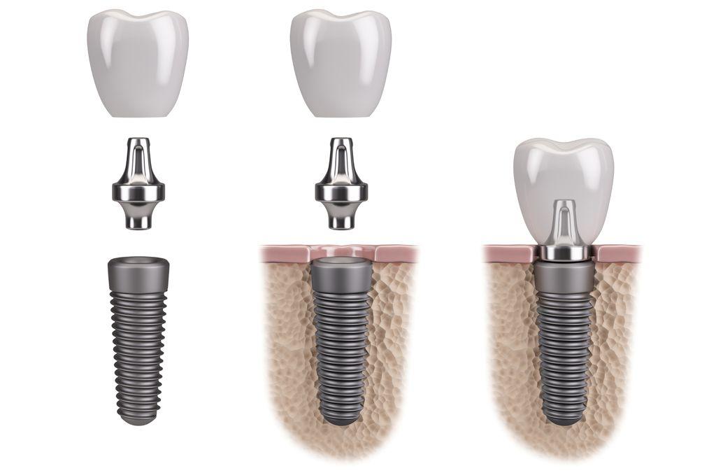 dental-implants-illo-01-compressor.jpg