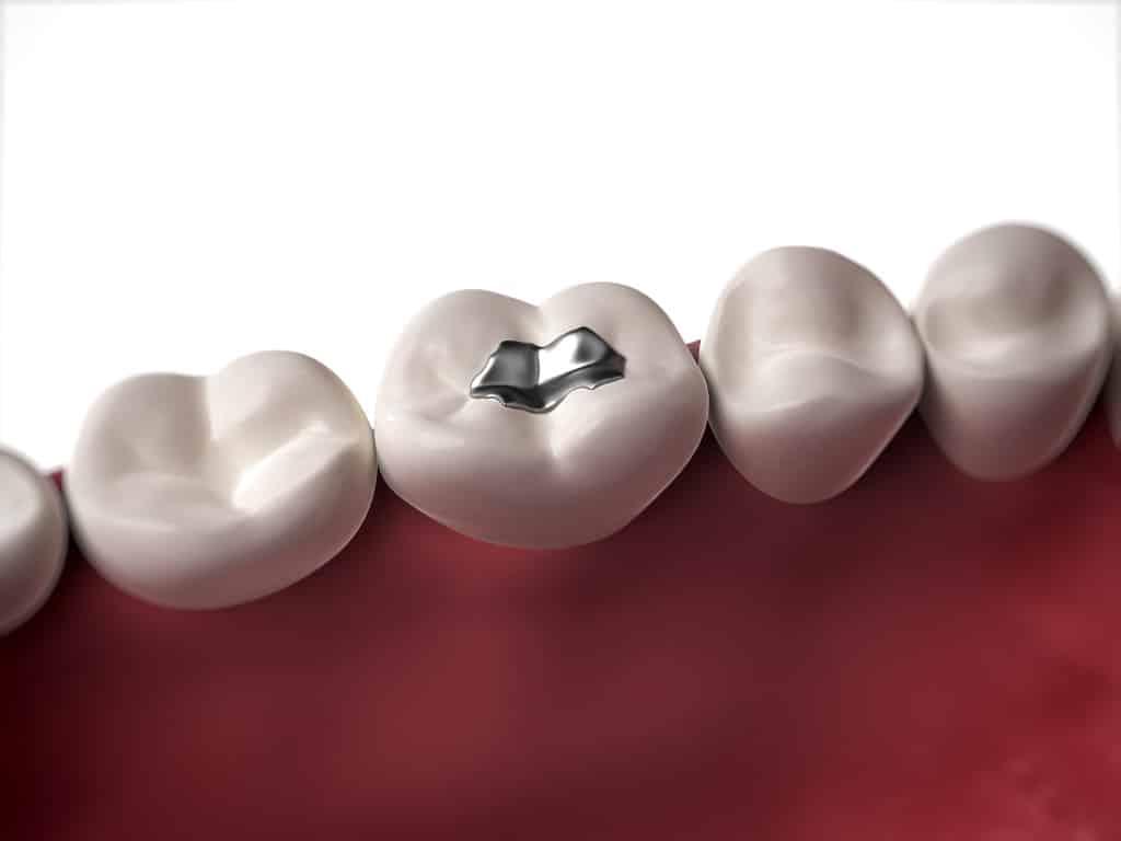 Dental-Fillings-1024x768.jpg