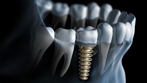 Dental Implants in Chennai.jpg