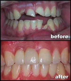 Emergency Dentistry in New York, NY.jpg
