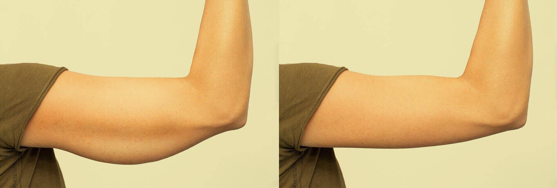 Arms.jpg