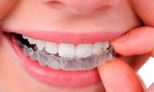 Dentist balmain (2).jpg