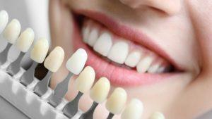 Dentist balmain.jpg