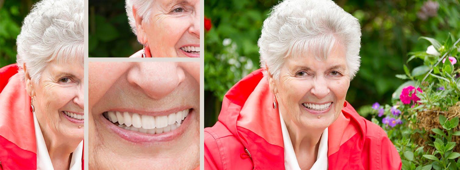 Dental Implants Victoria BC.jpg