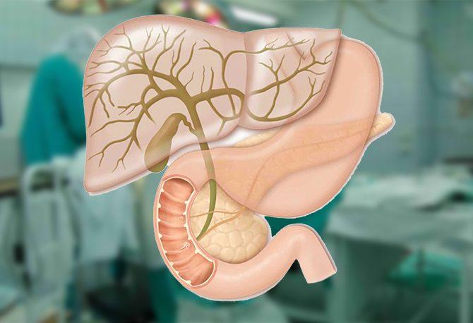 Hepatobiliary-surgery-768x458-670x458.jpg