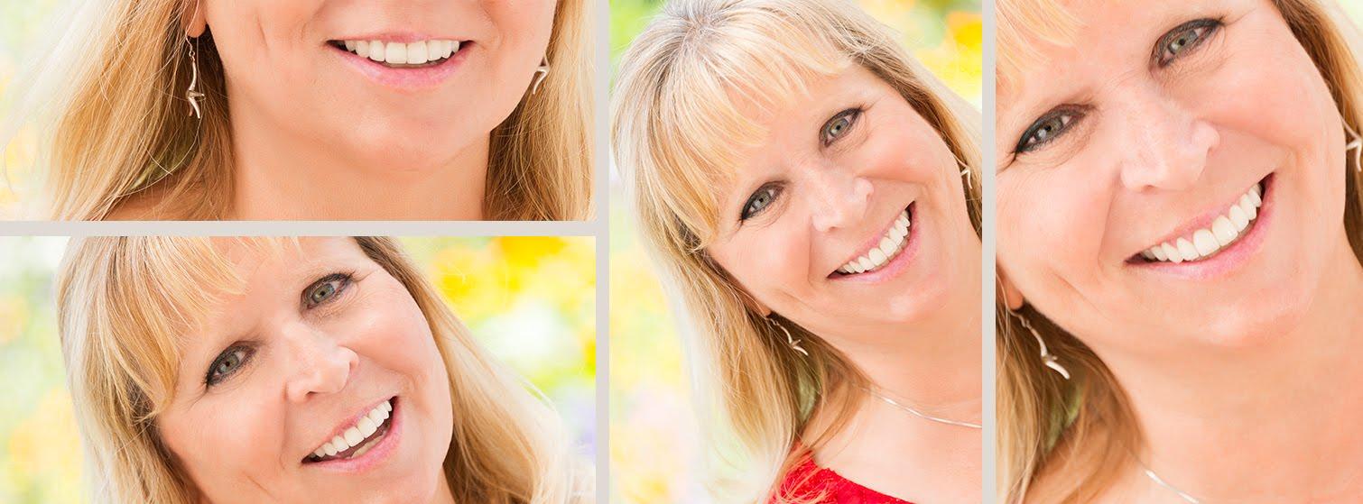 Smile Design Victoria BC.jpg
