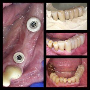Zahnarzt Dr Maximilian Fuhrmann  1
